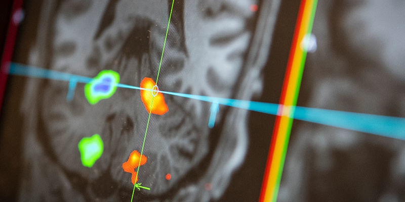 MRI image of the brain
